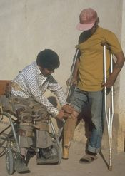 Man sitting adjusts bamboo limb of man using crutches.
