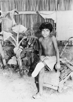 Boy sitting with an amputated leg below the knee.