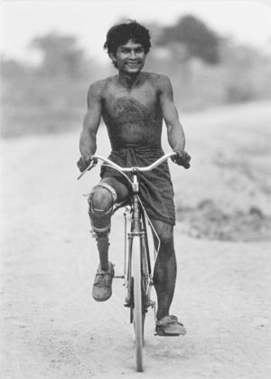 boy with amputated leg and prosthetic riding a bicycle.