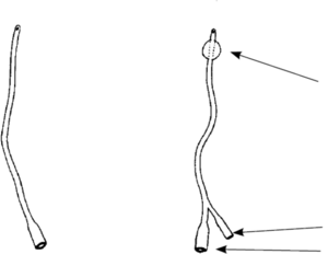 una ilustración de una sonda intermitente y una sonda Foley.