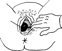 a woman's vagina with a dark, swollen area inside.
