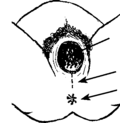 illustration of a median cut.