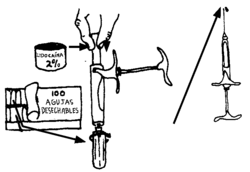 illustration of the above: a metal syringe.