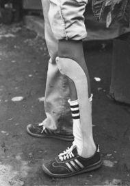 Photo of leg with plastic brace.