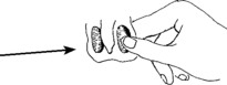 Ilustración del escroto que muestra los 2 testículos adentro; tienen una forma ovalada.